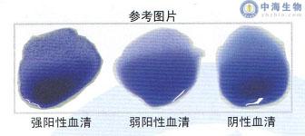 鸡白痢鸡伤寒多价染色平板凝集试验抗原结果判定参考图片